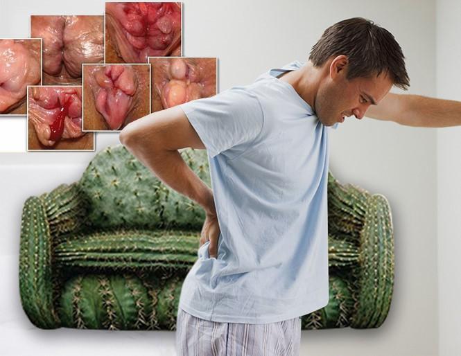tác hại của bệnh trĩ ngoại