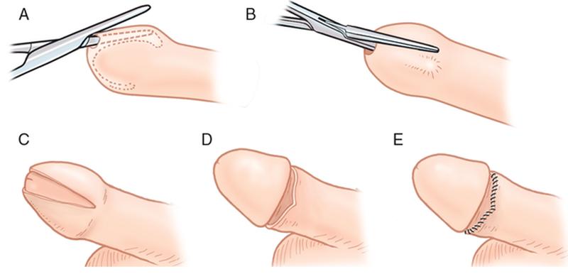 quy trình cắt bao quy đầu
