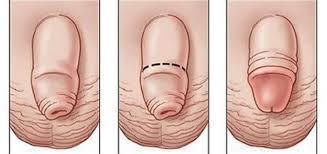 quy trình cắt hẹp bao quy đầu