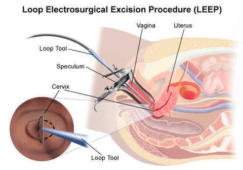 cắt leep chữa viêm lộ tuyến cổ tử cung
