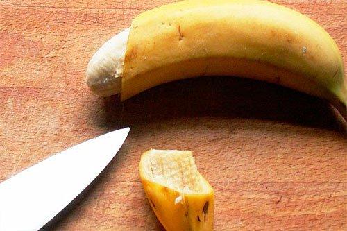 phương pháp cắt hẹp bao quy đầu