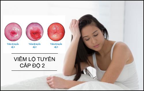 viêm lộ tuyến cổ tử cung cấp độ 2