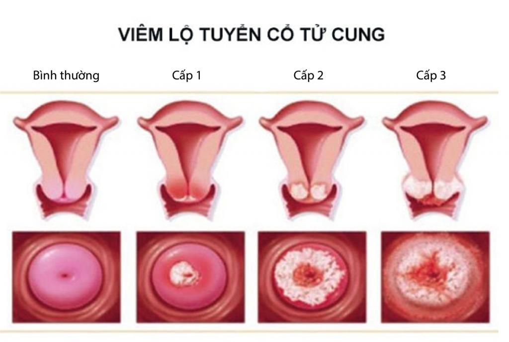 chữa viêm lộ tuyến cổ tử cung ở đâu
