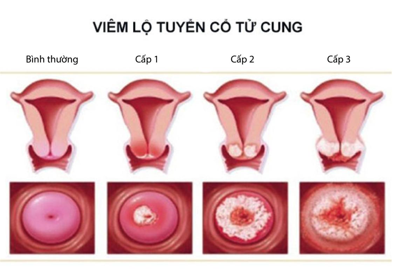 chữa viêm lộ tuyến cổ tử cung bằng laser