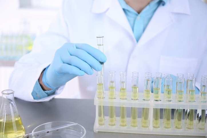 Catecholamine là gì? Xét nghiệm Catecholamine để làm gì?