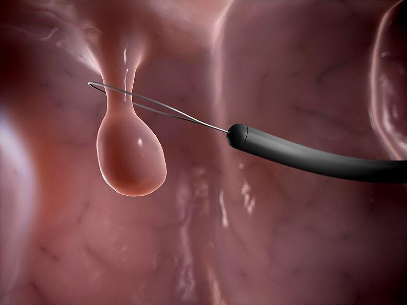 chi phí cắt polyp cổ tử cung
