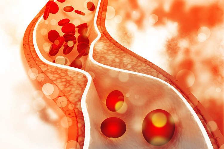 Cholesterol cao có nguy hiểm không