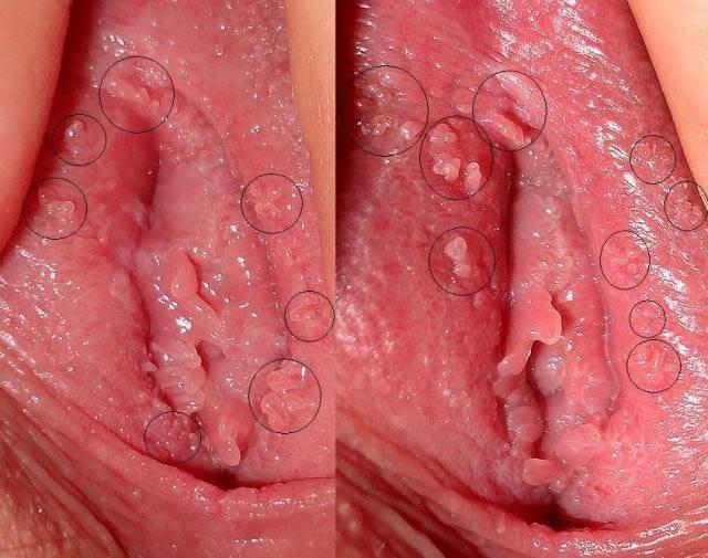 hình ảnh gai sinh dục mọc ở âm đạo nữ giới