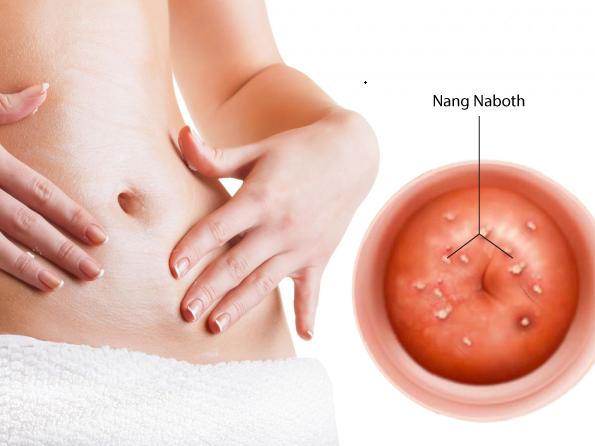 Nang naboth cổ tử cung: Nguyên nhân, triệu chứng và cách điều trị