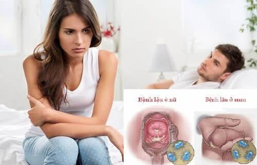 Bệnh lậu: Nguyên nhân, dấu hiệu nhận biết và cách chữa trị