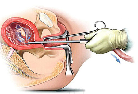 Phá thai bằng ống siêu dẫn liệu có an toàn? Ưu nhược điểm là gì?