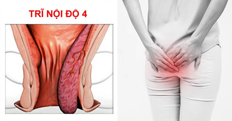 Bệnh trĩ cấp độ 4 nguy hiểm như thế nào? Dấu hiệu và cách điều trị