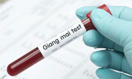 Xét nghiệm bệnh giang mai ở đâu Bắc Ninh chuẩn xác nhất?