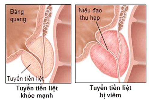 3 Cách chữa viêm tuyến tiền liệt phổ biến hiện nay