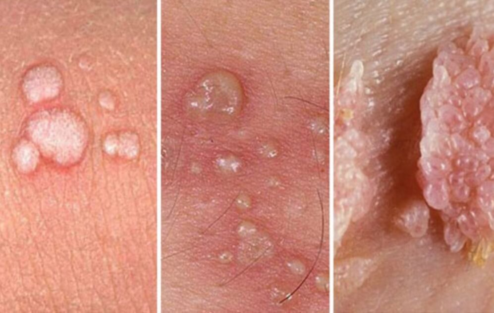 Bệnh sùi mào gà: Nguyên nhân, triệu chứng, cách chữa trị hiệu quả