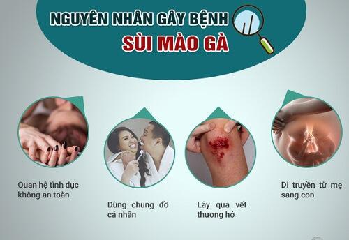 3 Nguyên nhân gây bệnh sùi mào gà bạn cần biết