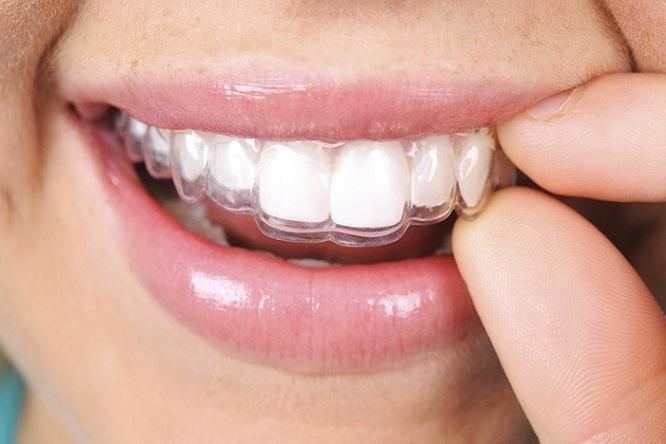 Niềng răng giá bao nhiêu tiền? Địa chỉ niềng răng uy tín