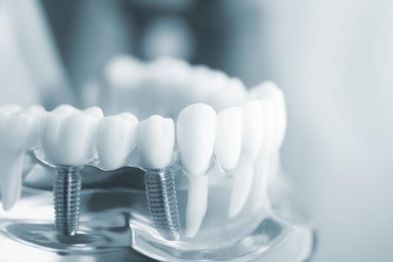 Trồng răng Implant có tốt không? Địa chỉ cấy ghép implant uy tín